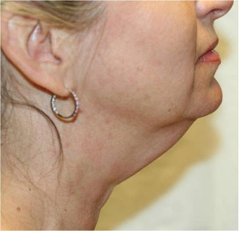 SmartLipo of Neck - Right Lateral View