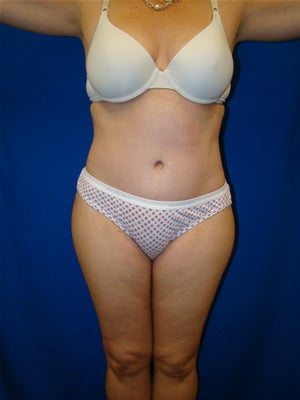 Tummy Tuck Surgery (abdominoplasty) after 127284