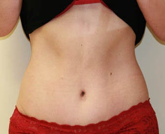 Abdominoplasty (Tummy Tuck) after 232367