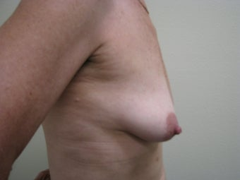 Breast Reconstruction Immediate  347580