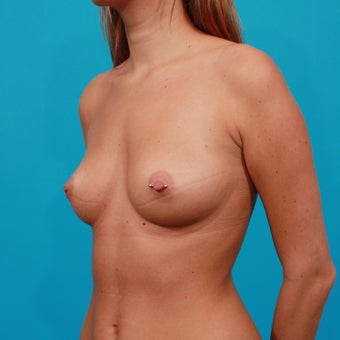 Breast Augmentation: 325 cc Silicone Gel Implants before 134612