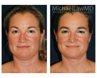 Chin Liposuction before 395806