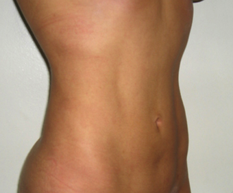 Vaser Liposuction after 229655