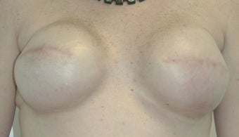 Breast Reconstruction 517542