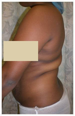 Laser Liposuction before 179113