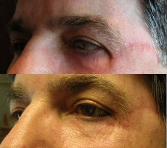 Upper eyelid surgery before 214842