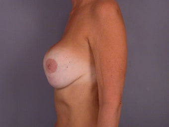Breast lift and Implants before 306359