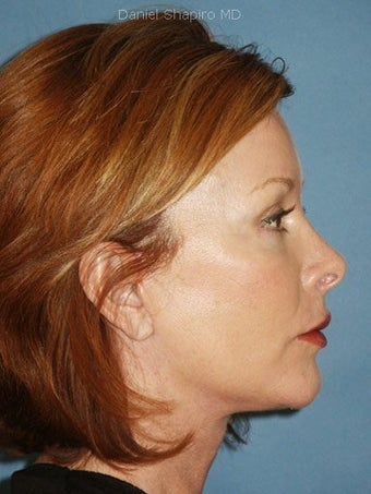 Facelift, Endoscopic Browlift, Upper and Lower Blepharoplasty, Perioral Dermabrasion after 248924