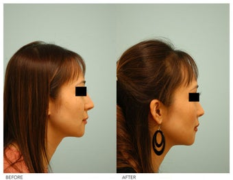 Asian Rhinoplasty before 136826