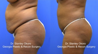 Mini Tummy Tuck after 568396