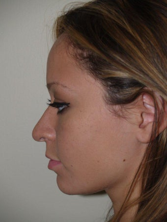 Rhinoplasty before 519756