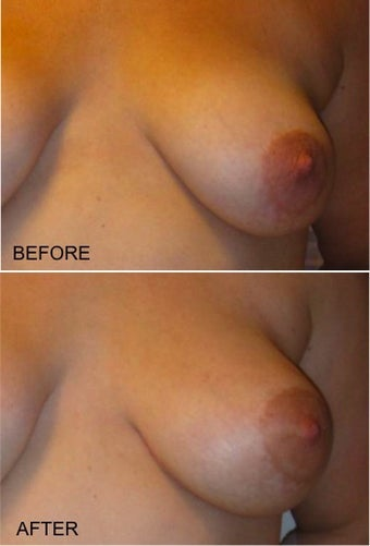 "LSGAP ""Love Handle"" Flap Breast Reconstruction before 416806"