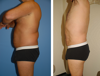 Male Liposuction before 289514