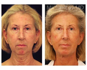 Facial Rejuvenation before 395135