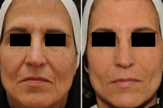 Restylane and Botox before 311737