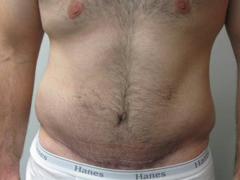 Abdominoplasty on 24 year old man after 335195