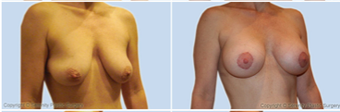 Breast Lift before 214368