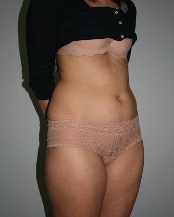Mini-Abdominoplasty 644758