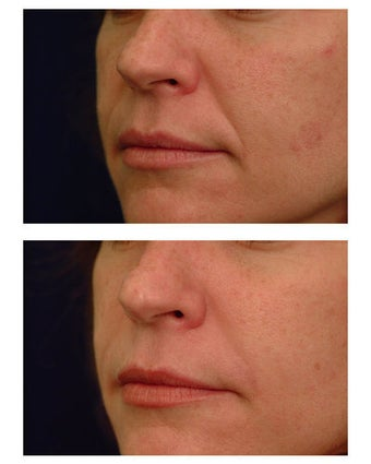 Injectable Filler before 301187