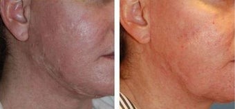 Acne Scar Treatment, Excision, Co2 Laser Resurfacing before 343516