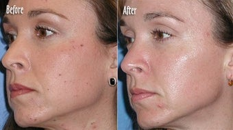 IPL for Age Spots and Freckles before 6374