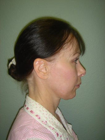 Facelift, Mini Face Lift, Quicklift before 242560