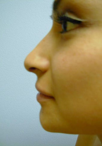 Rhinoplasty after 355874