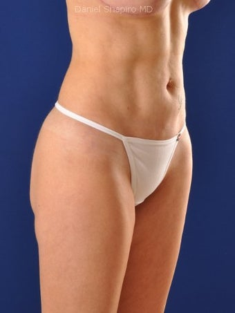 Vaser Hi Def Liposuction of abdomen, thighs, flanks and back with fat injections to buttocks 422671