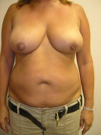 Liposuction of the Abdomen with Breast Reduction after 273955