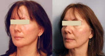 Sculptra treatments after 125340