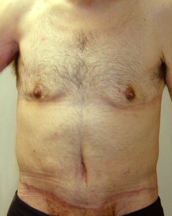 Bodylift & removal of excess chest skin after 527247