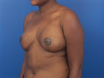 Breast Reconstruction following mastectomy after 471763