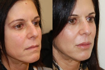 Lip Augmentation with Silikon-1000. 2 treatments. before 430183