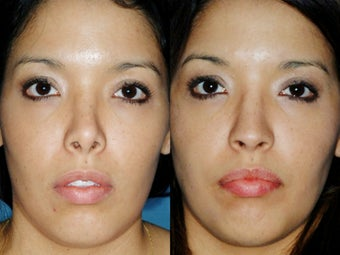 Revision rhinoplasty before 395565