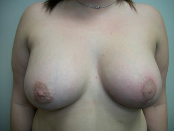 Breast Correction after 281755