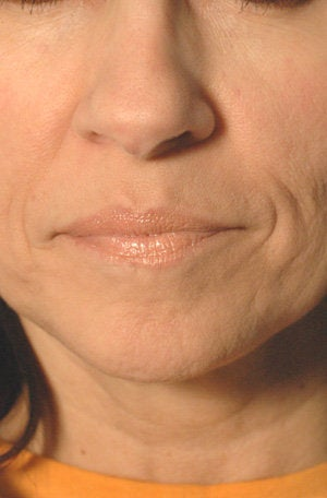 Juvederm for Mouth Rejuvenation  before 204763