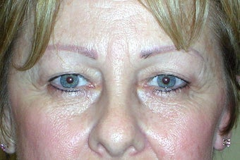 Endoscopic Brow Lift before 249006