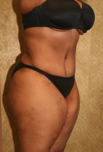 tummy tuck after 304688