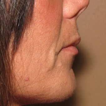 Lip lift - permanent lip enhancement 571634