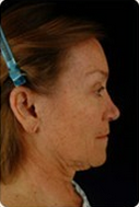 Face and neck lift 6744