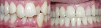 Before and after orthodontic treatment before 300717