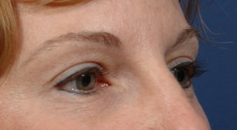 Endoscopic Browlift and Upper lid Blepharoplasty  after 414272
