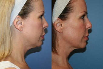 Smart Lipo MPX neck liposuction before 77132