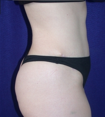 Tummy Tuck (abdominoplasty) 208463