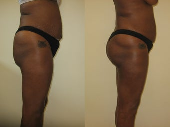 Gluteal augmentation before 220822