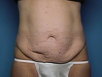 Abdominoplasty before 134581