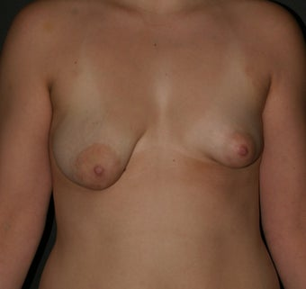 Breast Augmentation/ Reconstruction before 307228