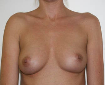 Augmentation Mammaplasty (Breast Implants)