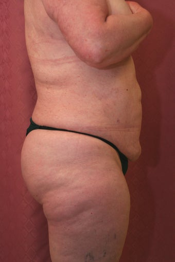 liposuction of abdomen and flanks 582240