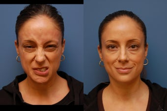 Botox for facial paralysis before 314253